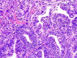 Histopathologic image of endometrial adenocarcinoma in biopsy specimen.