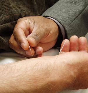 Specialist inserting a small acupuncture needle into a man's forearm