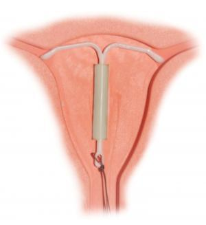 Photo of intrauterine device